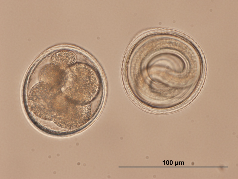 Toxocara_embryonated_eggs.jpg